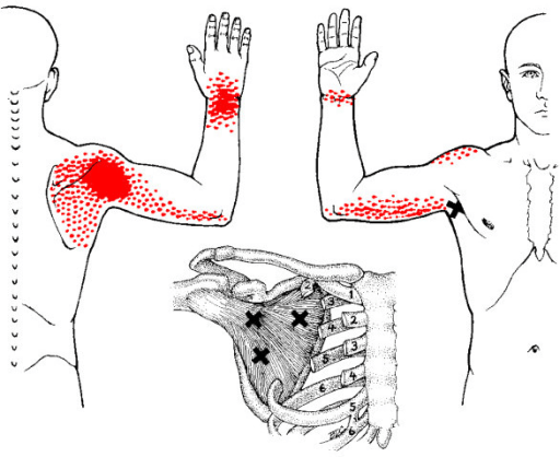 guitar wrist pain may be caused by trigger points in the subscapularis muscle